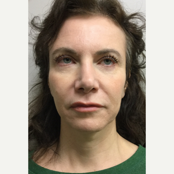 45-54 year old woman treated with Mini Facelift with Neck Liposuction and Chin Implant before 3371353