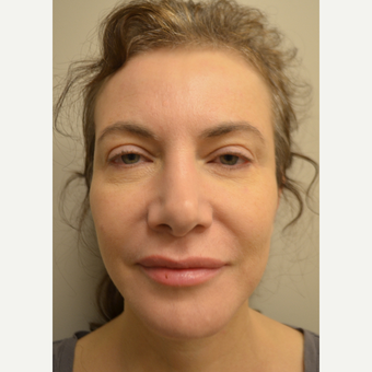 45-54 year old woman treated with Mini Facelift with Neck Liposuction and Chin Implant after 3371353
