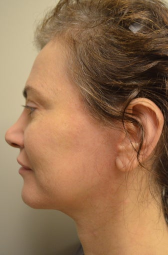 45-54 year old woman treated with Mini Facelift with Neck Liposuction and Chin Implant 3371353
