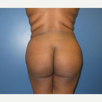 25-34 year old woman treated with Brazilian Butt Lift after 3724983