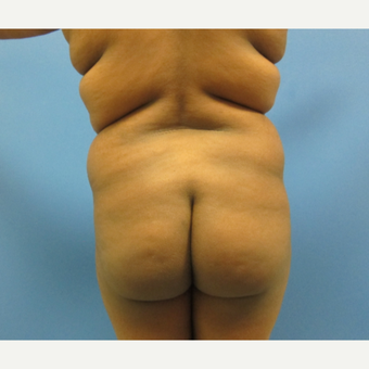 25-34 year old woman treated with Brazilian Butt Lift before 3724983