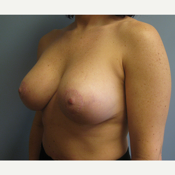 35-44 year old woman treated with Breast Implant Revision after 3539006