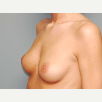 24 y/o Transaxillary Submuscular Breast Augmentation before 3066496