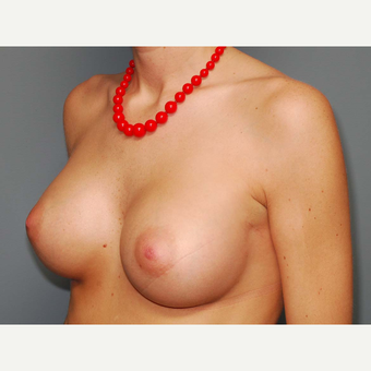 24 y/o Transaxillary Submuscular Breast Augmentation after 3066496