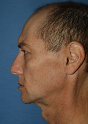 Transgender FFS Facial Feminization Rhinoplasty, Lip Enhancement VY Advancement before 1423901