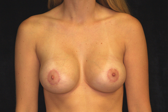 breast augmentation with mastopexy after 391316
