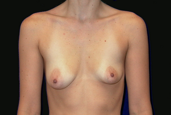 breast augmentation with mastopexy before 391316