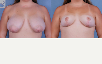 18-24 year old woman treated with Breast Reduction before 3770004