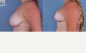 18-24 year old woman treated with Breast Reduction after 3770004
