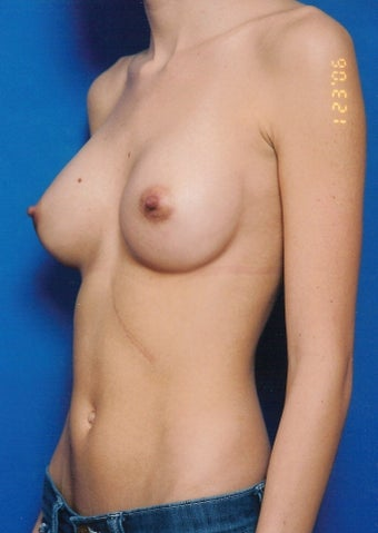 Breast Augmentation after 902902