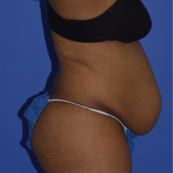 35-44 year old woman treated with No-Drain Tummy Tuck before 2975028