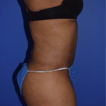 35-44 year old woman treated with No-Drain Tummy Tuck after 2975028