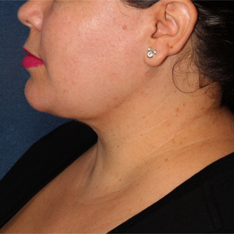 40 year old woman treated with Liposculpture to the neck area after 3420177