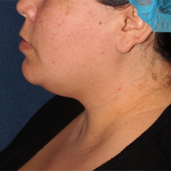 40 year old woman treated with Liposculpture to the neck area before 3420177
