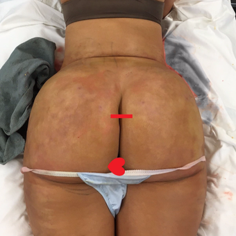 25-34 year old woman treated with Smart Lipo after 3624895
