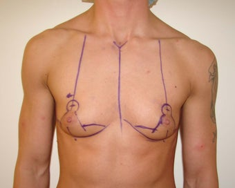 """Top Surgery"" FTM chest masculinization before 867221"