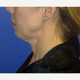 47 year old woman treated with Neck Lift before 3054236