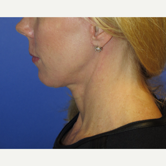 47 year old woman treated with Neck Lift after 3054236