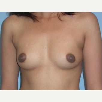 24 year old breast augmentation.  Saline, 300 cc filled to 325.  A to small C cup before 3294395