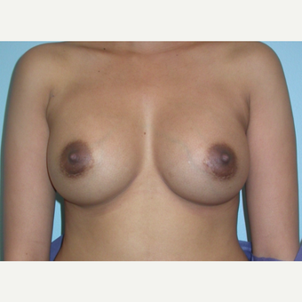 24 year old breast augmentation.  Saline, 300 cc filled to 325.  A to small C cup after 3294395