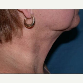 Neck Liposuction after 1608626