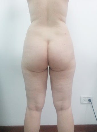 25-34 year old woman treated with Vaser Liposuction 2498090