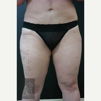 35-44 year old woman treated with Vaser Liposuction before 3591152