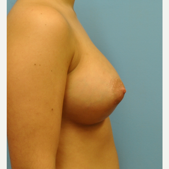 22 year old woman treated with Breast Augmentation, High profile silicone through IMF after 3492838