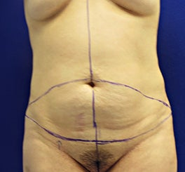 Tummy Tuck before 945209