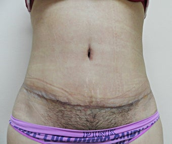 Tummy Tuck after 945209