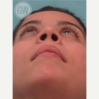 25-34 year old woman treated with Rhinoplasty before 3472405