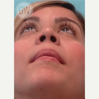 25-34 year old woman treated with Rhinoplasty after 3472405