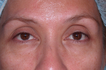 Eyelid Surgery before 302506