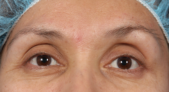 Eyelid Surgery after 302506
