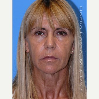 35-44 year old woman treated with Facelift before 3008502