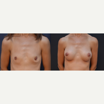 35-44 year old woman treated with Breast Implants before 3238804