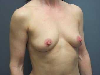 Breast Augmentation on 49 Year Old 1114882