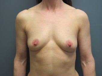 Breast Augmentation on 49 Year Old before 1114882