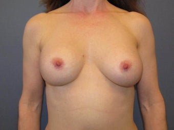 Breast Augmentation on 49 Year Old after 1114882