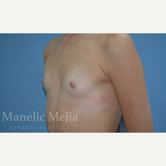 18-24 year old woman treated with Breast Augmentation before 3647430