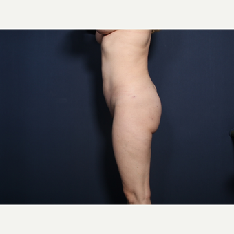 35-44 year old woman treated with Liposuction (view 2 of 2) after 3181860