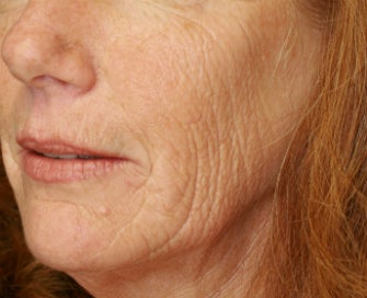 Laser Skin Renewal of Cheek Wrinkles before 1174468