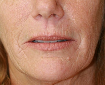 Laser Skin Renewal of Cheek Wrinkles 1174468