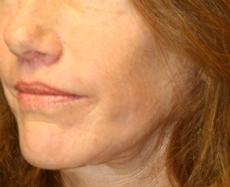 Laser Skin Renewal of Cheek Wrinkles after 1174468