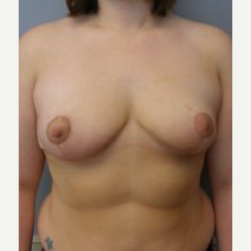 18-24 year old woman treated with Breast Reduction after 3280715