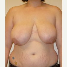 18-24 year old woman treated with Breast Reduction before 3280715