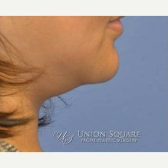 35-44 year old woman treated with Chin Liposuction 1982192