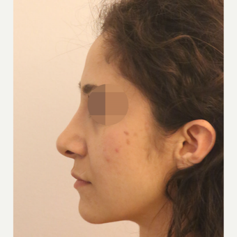 25-34 year old woman treated with Rhinoplasty after 3522473