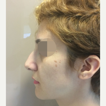 25-34 year old woman treated with Rhinoplasty before 3522473