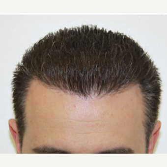 Repair Case: FUE Hair Restoration with Dr. Baubac after 3645929